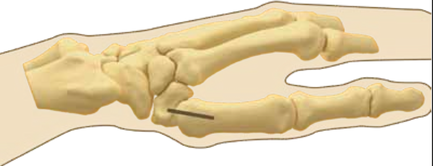 thumb pyrocarbon joint replacement maguire upper limb dr michael